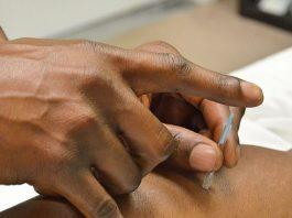 Hvad kan akupunktur hjælp emed